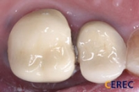 Single Posterior Crown Before