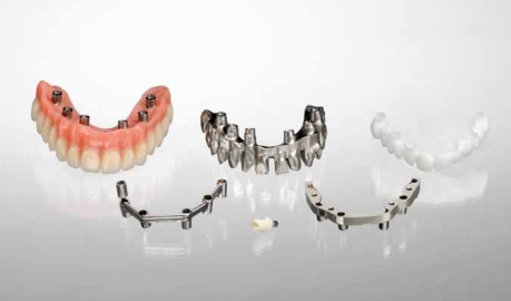 Implant Restoration Tools - Huntline Dental Group