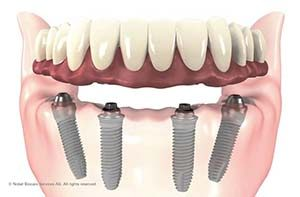 Implant Supported Denture - Huntline Dental Group