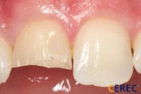 Anterior Single Veneer Before