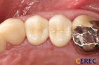 Posterior Crown After