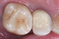Single Posterior Crown After
