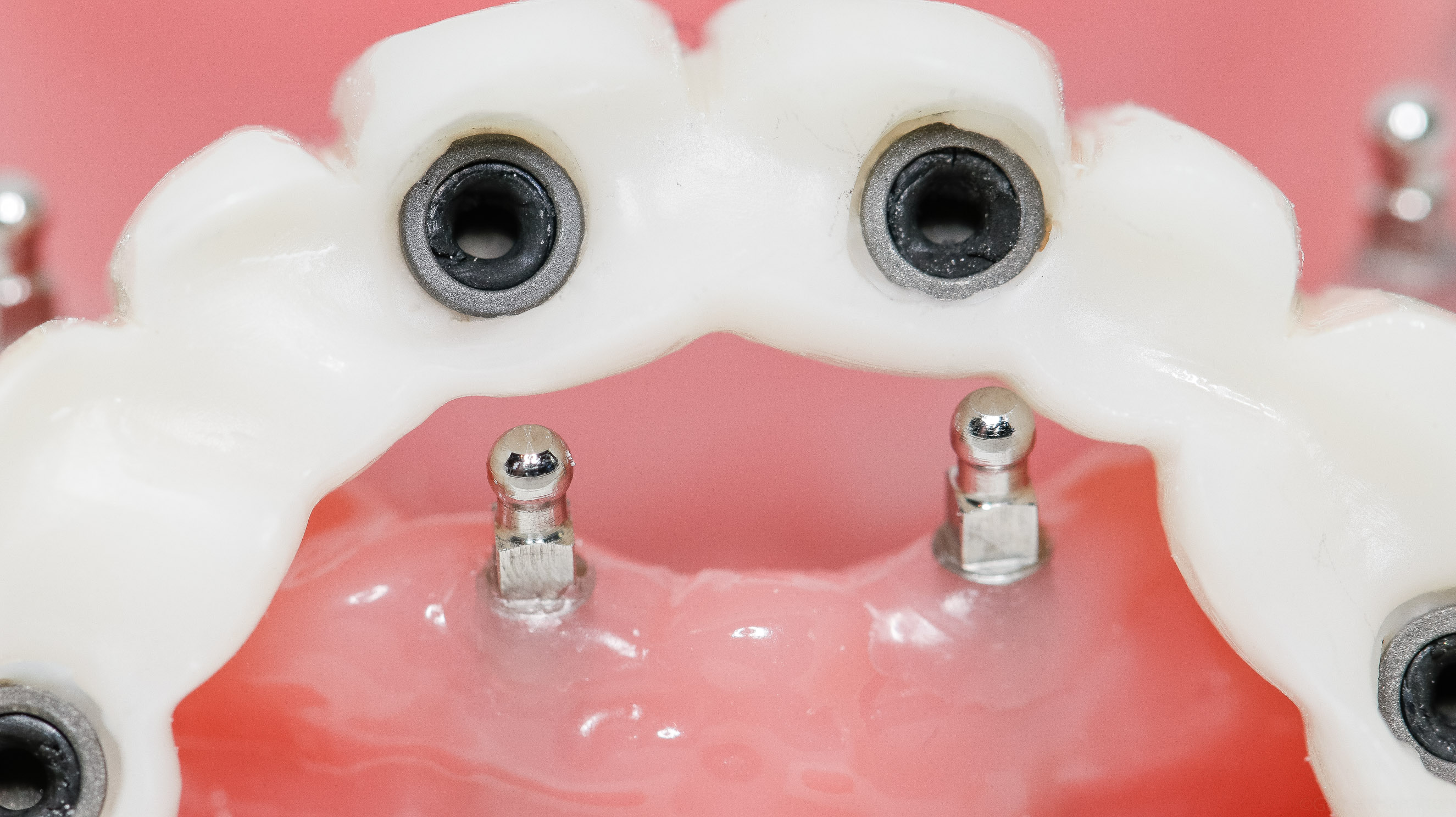 Mini Dental Implants Find A Mini Implant Dentist In Your