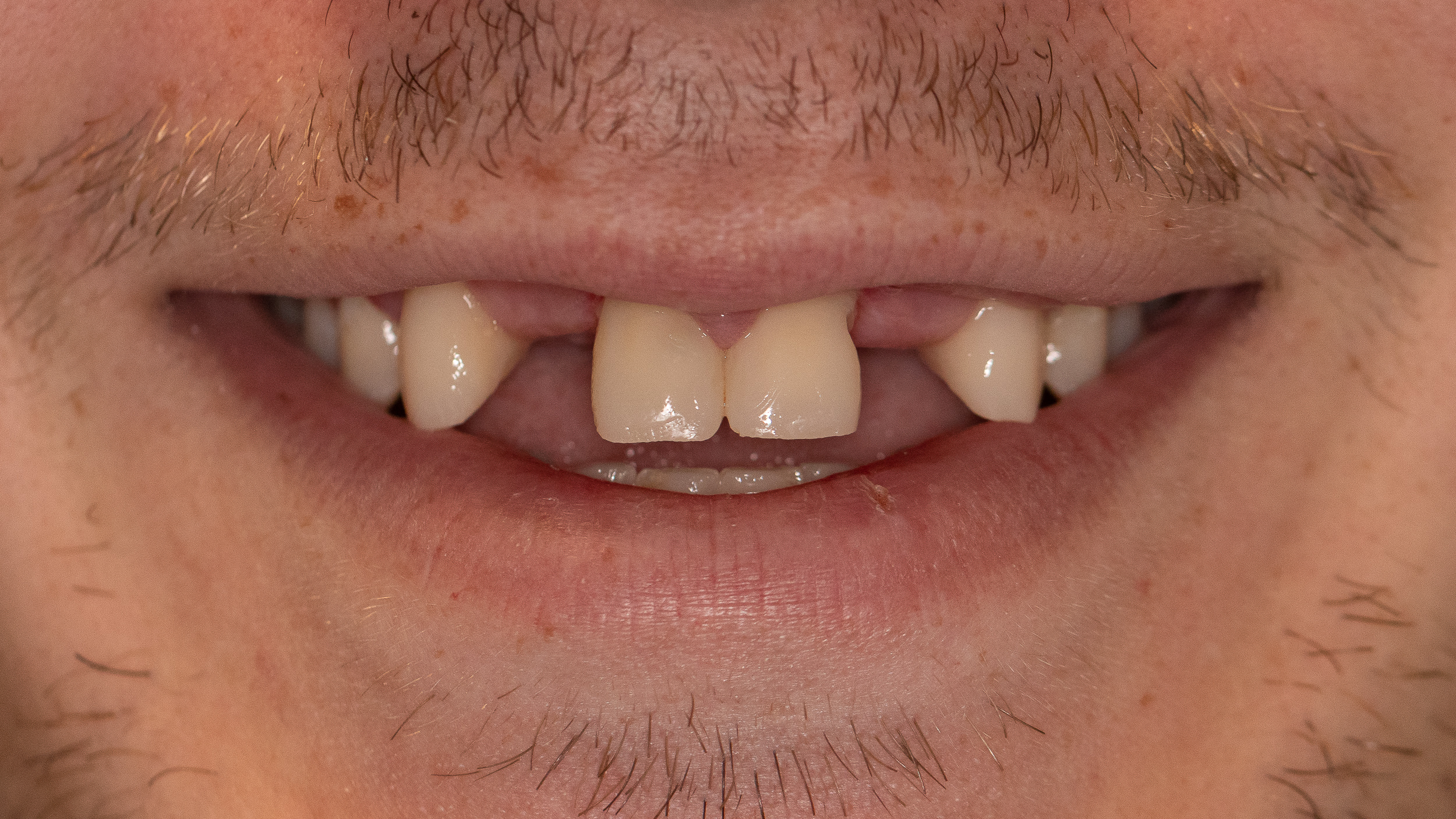 dental bridge, tooth bridge, permanent dental bridge